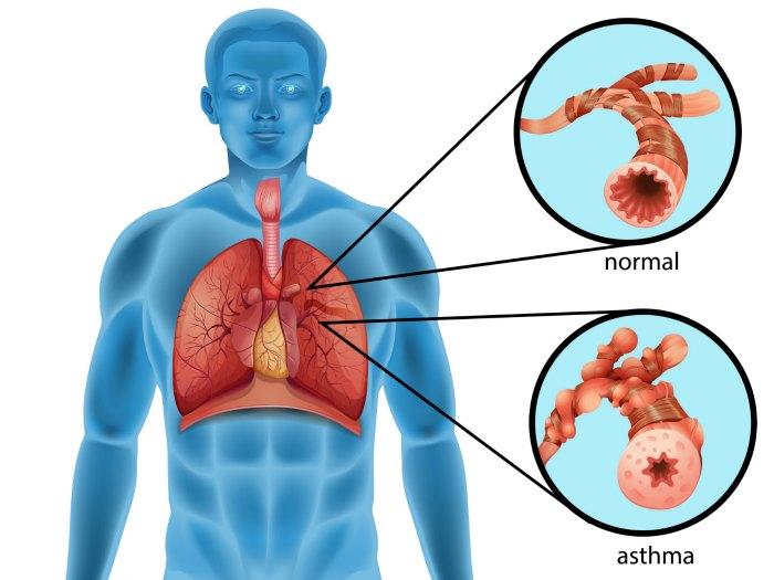 sintomas asma cansancio