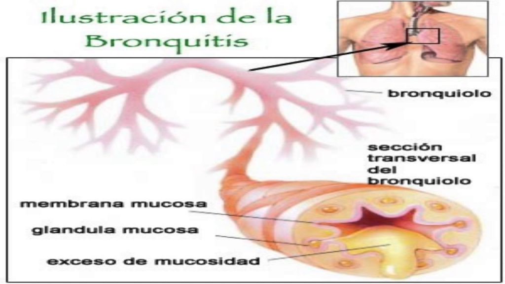 sintomas de bronquios cerrados