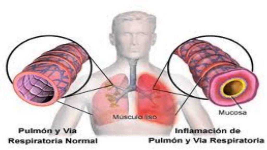 síntomas de bronquitis y gripe