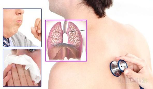 sintomas de bronquios inflamados