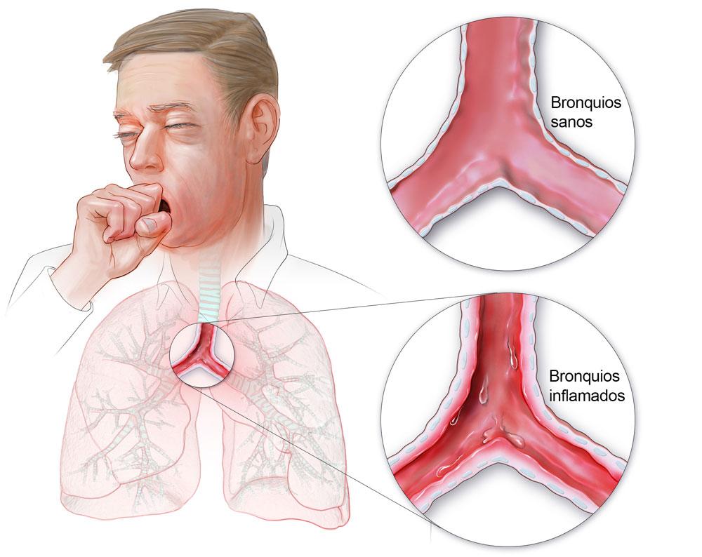 sintomas de bronquitis infecciosa