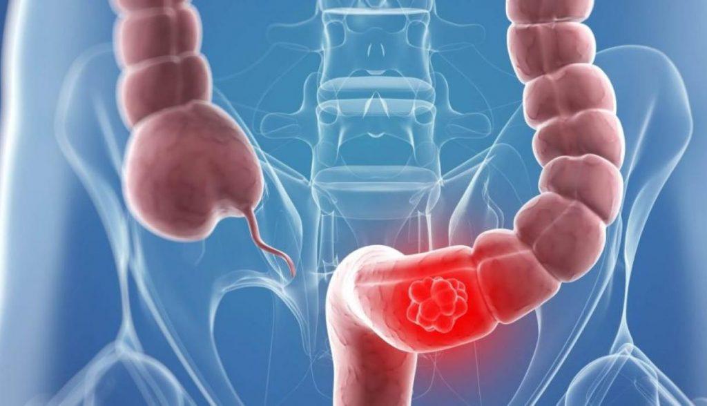 cancer de estomago sintomas brasil