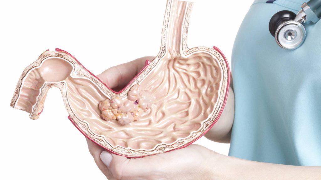 cancer de estomago sintomas y tratamiento