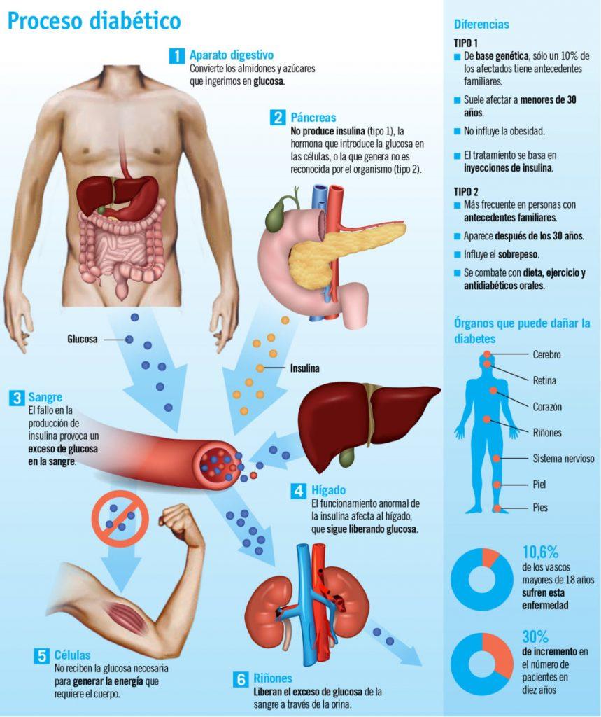 sintomas diabetes juvenil en niños