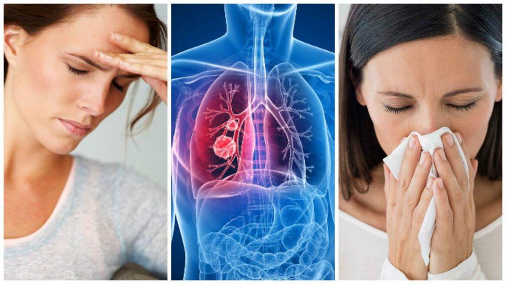 síntomas de hepatitis a