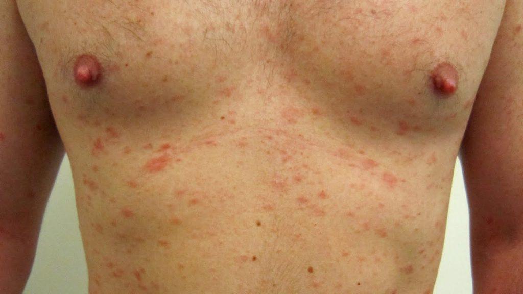 signos y sintomas de escarlatina