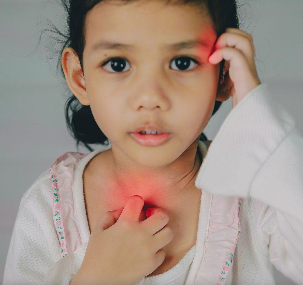 sintomas escarlatina contagio