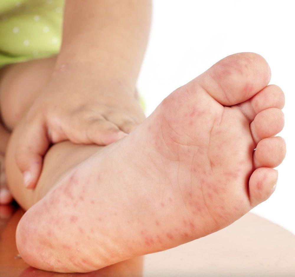 como aliviar los sintomas de escarlatina