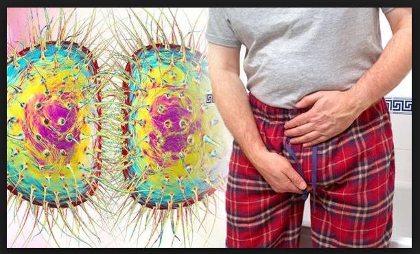 los sintomas de la gonorrea en el hombres