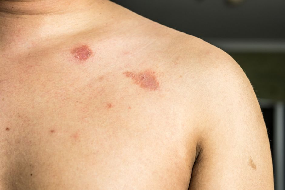 como aliviar sintomas de herpes zoster