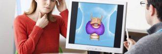 Hipotiroidismo síntomas