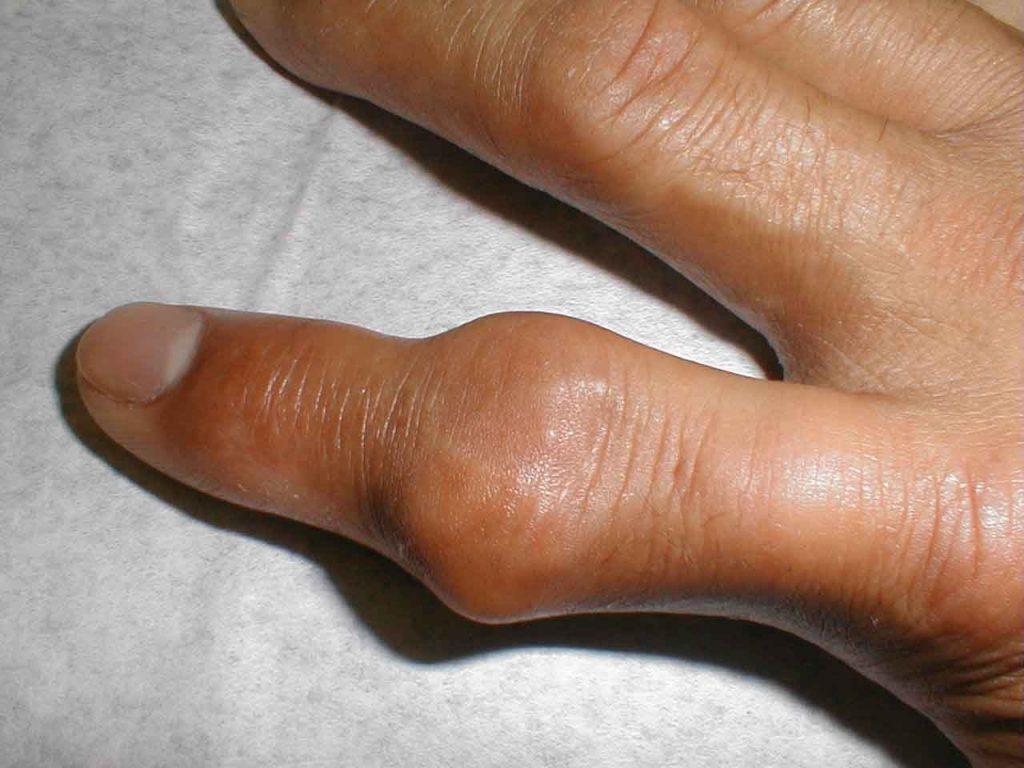 gota sintomas causas tratamiento