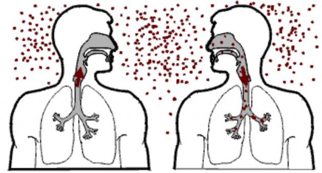 neumonia sintomas y causas