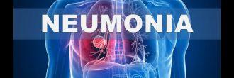 Síntomas de neumonía