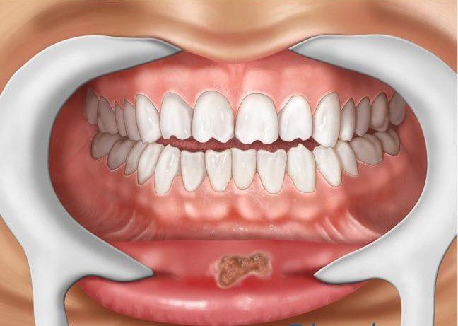 síntomas de sífilis en la boca