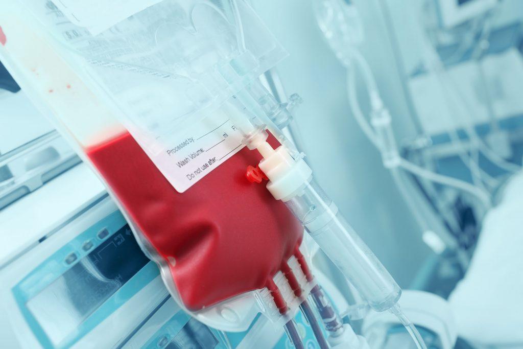 sintoma de leucemia en bebes