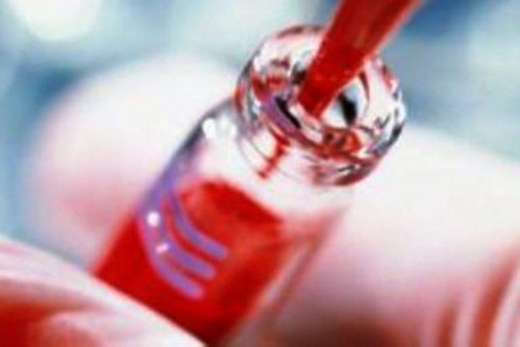 síntomas de leucemia adultos