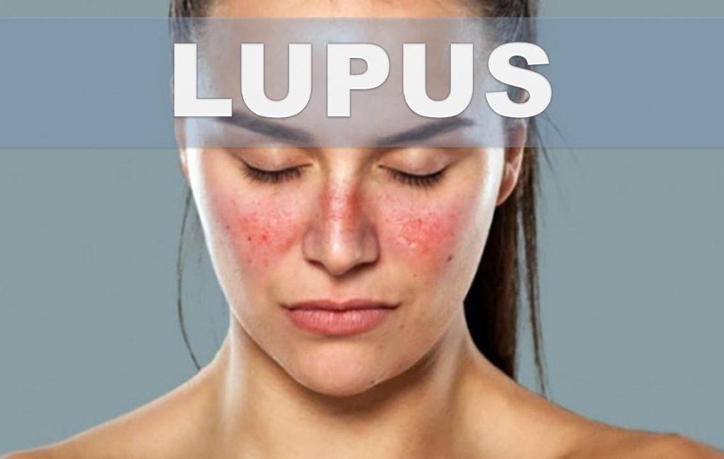 sintomas de lupus activo