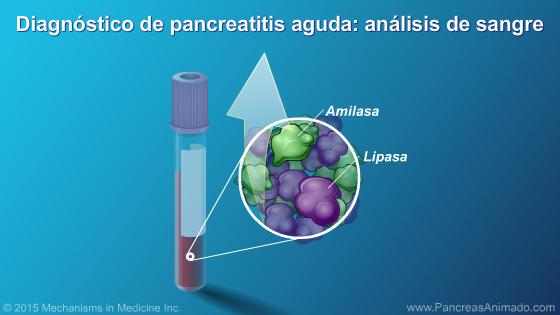 sintomas específicos de pancreatitis