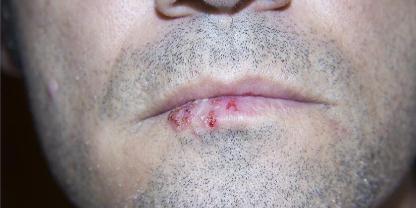virus de papiloma humano sintomas y tratamiento
