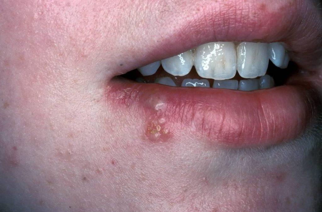 enfermedad del papiloma humano sintomas