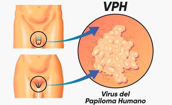 vírus do papiloma humano sintomas