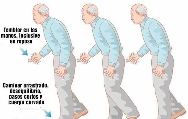 sintomas clinicos de parkinson