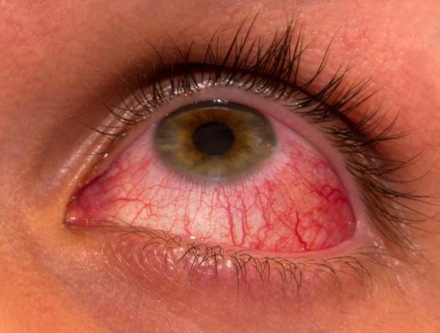 signos y síntomas de sífilis