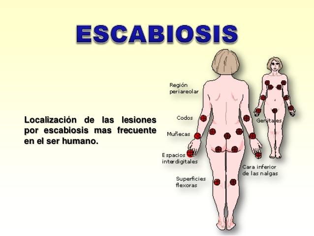 síntomas de sarna humana