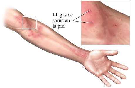 sintomas de sarna en humanos