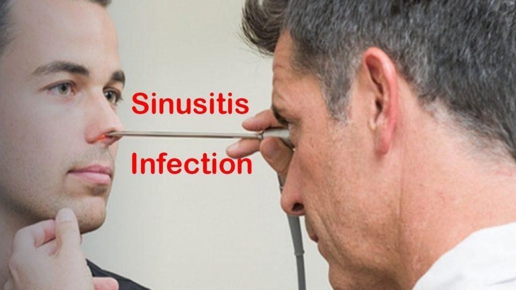 sintomas de sinusitis por tabique desviado