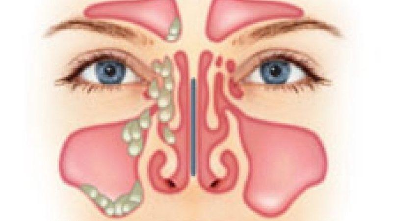 sintomas del sinusitis en general