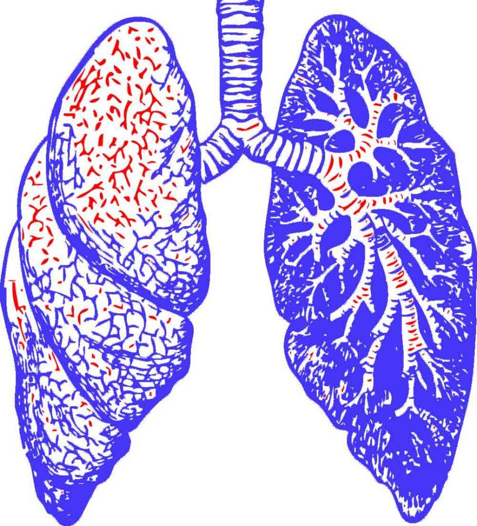 sintomas de tuberculosis adultos