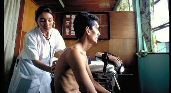 sintomas fisicos de tuberculosis