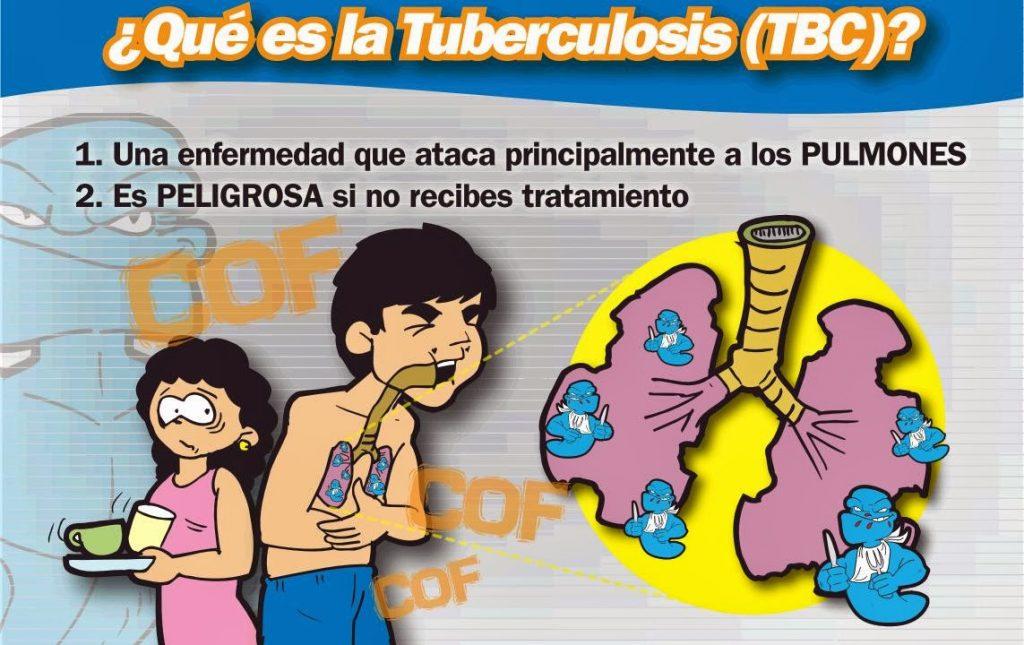 sintomas de tuberculosis ganglionar