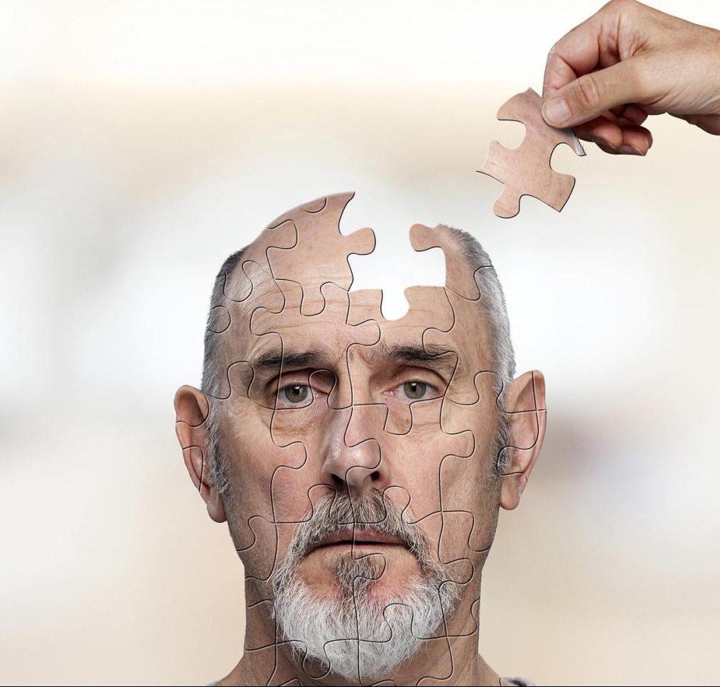 sintomas de principio de tumor cerebral