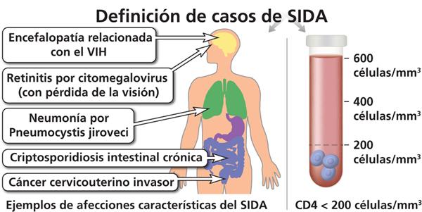 sintomas de la enfermedad vih sida