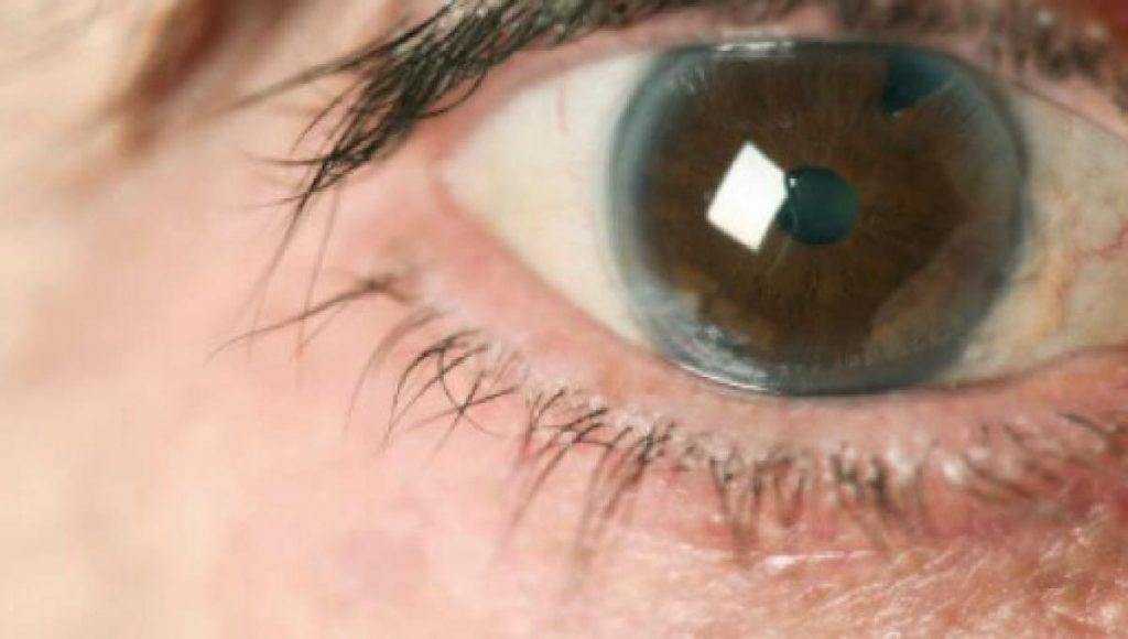 glaucoma avançado sintomas
