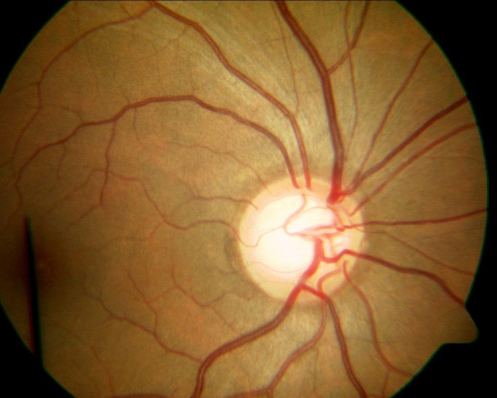 glaucoma síntomas causas