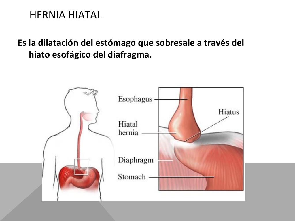 hernia hiatal sintomas