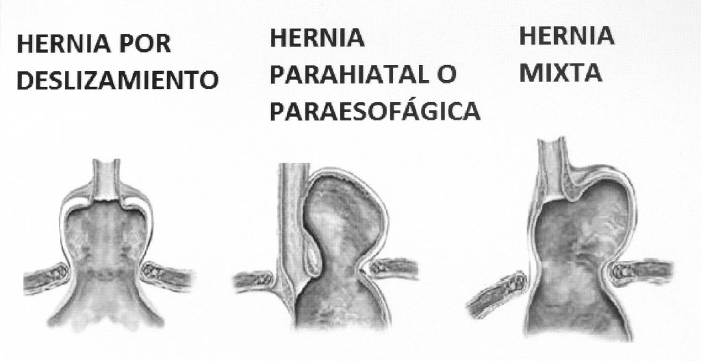 hernia hiatal sintomas dolor
