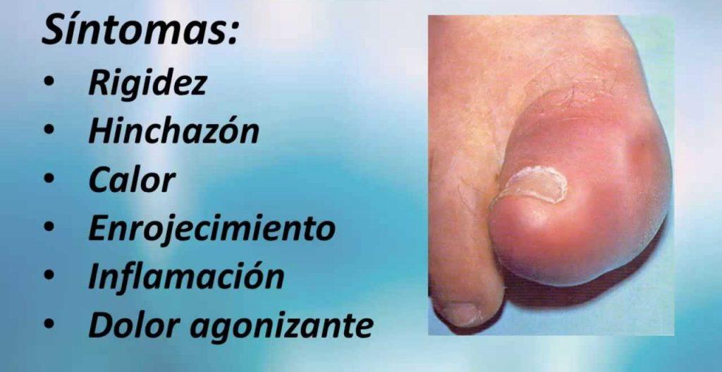 sintomas acido urico dedo gordo pie