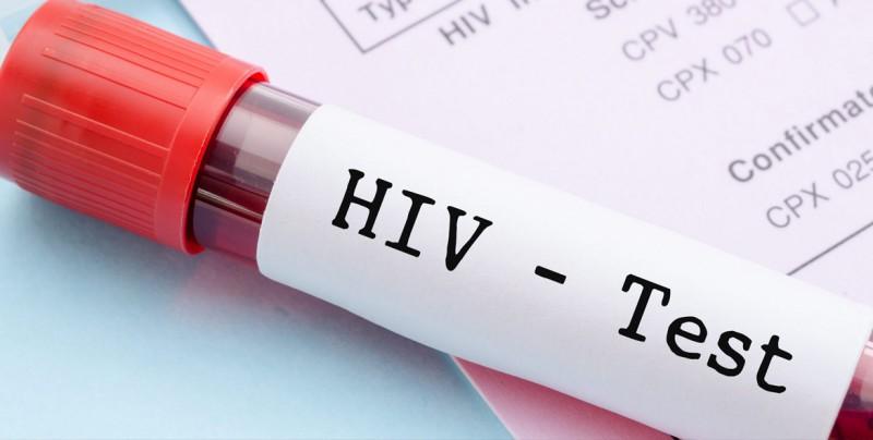 que sintomas produce el vih sida