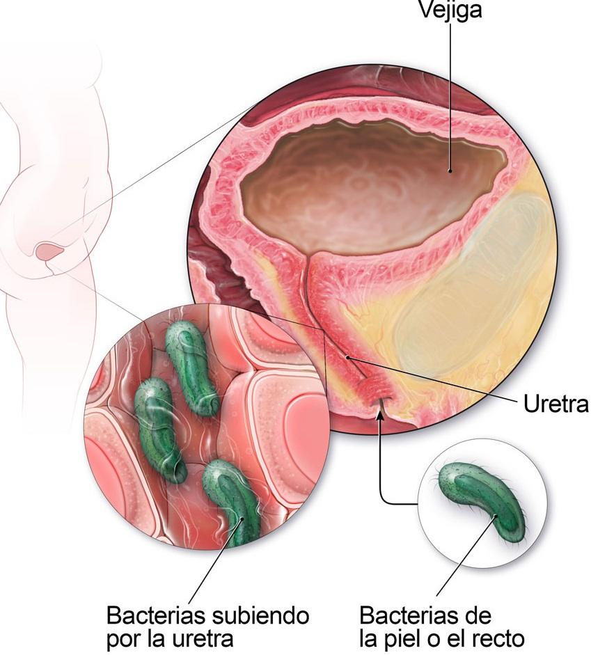 sintomas infeccion de orina cistitis