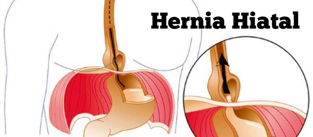 hernia de hiato por deslizamiento sintomas