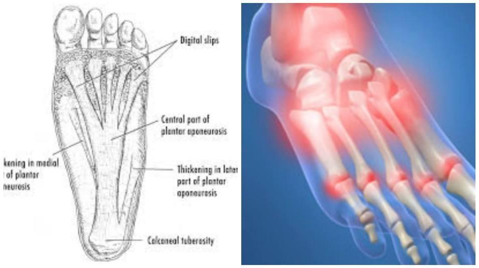 signos y sintomas de fascitis plantar