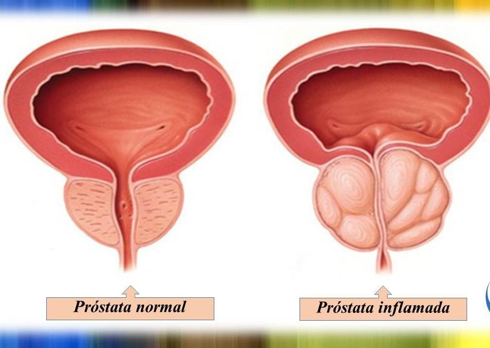 prostatitis y artritis reumatoide