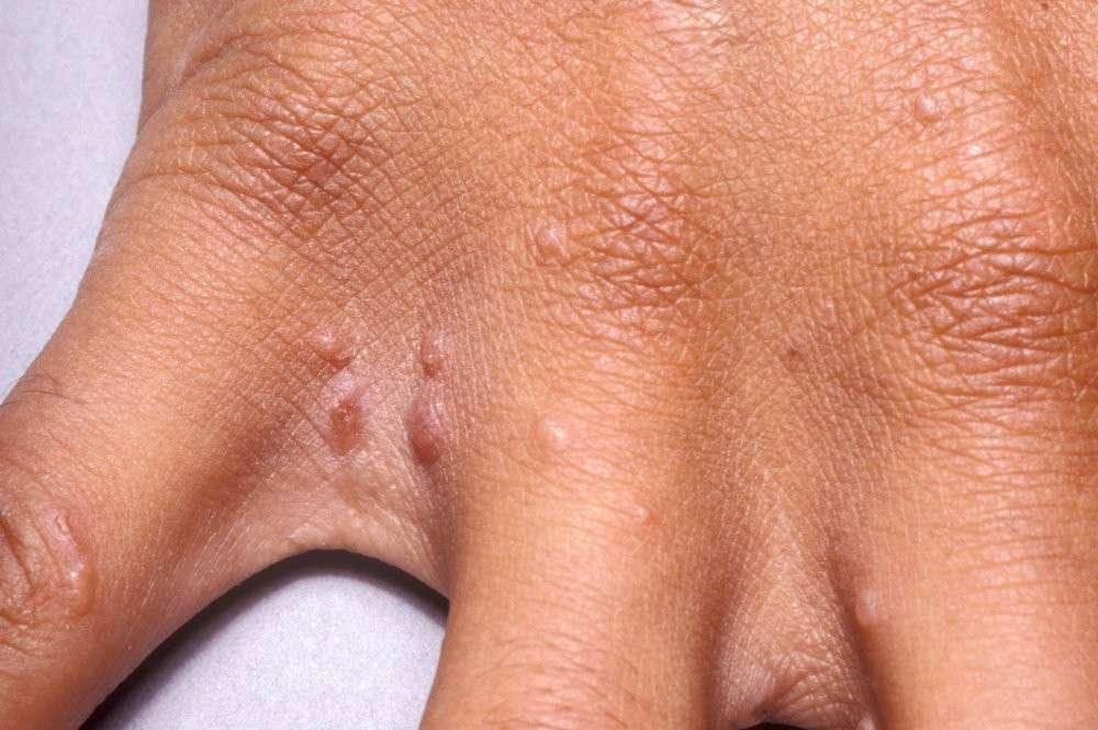 sintomas de sarna humana