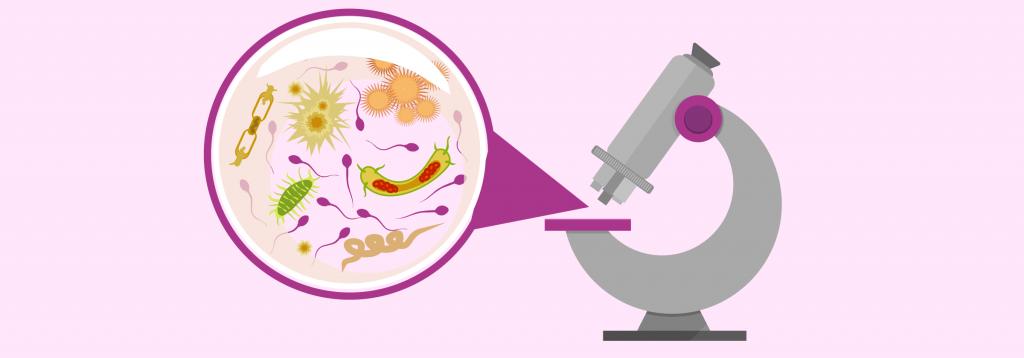 sintomas en la infeccion de orina