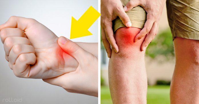 que sintomas son de artritis reumatoide